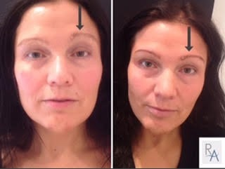 eyebrow-reshaping