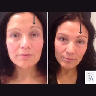 eyebrow reshaping
