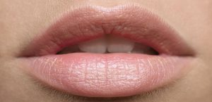 lip-fillers