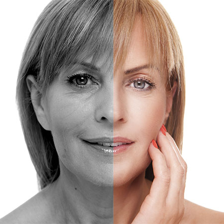 What can Mesotherapy do for me