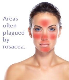 rosacea-facts