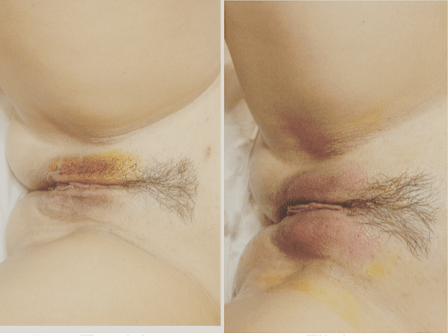 What is vaginal bleaching