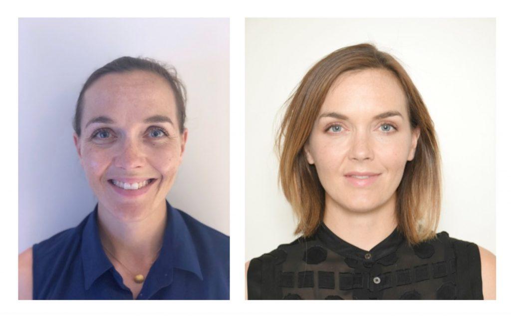 Victoria Pendleton before and after Ellansé