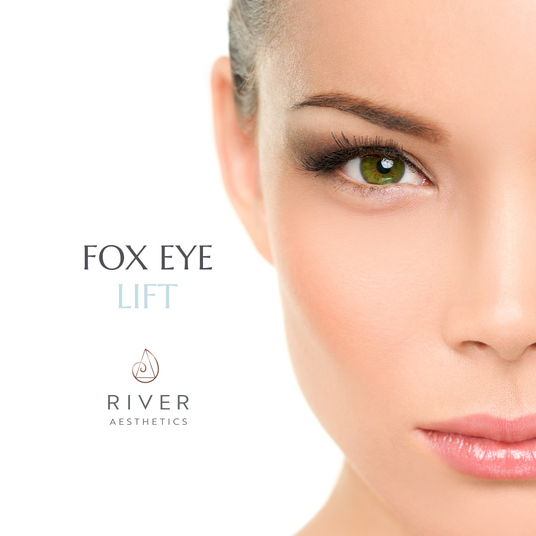 fox eye lift by river aesthetics