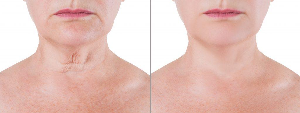 Before and after neck rejuvenation